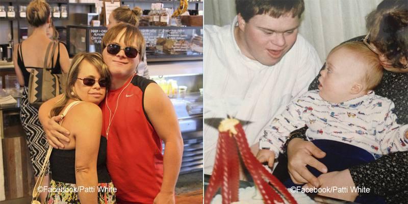 Lisa e Nick con sindrome di Down mettono al mondo un bambino